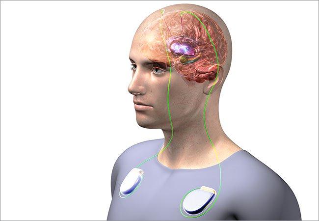 Phương pháp kích não sâu trong điều trị hội chứng tic